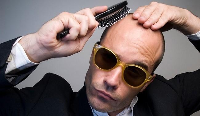 alopecia-causas-y-remedios-caseros-alopecia