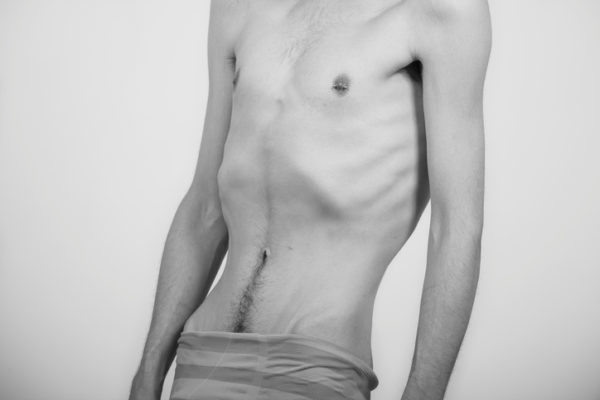 Como afecta la anorexia a la salud miedo a comer