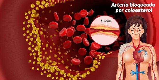 problemas-de-tener-el-colesterol-alto