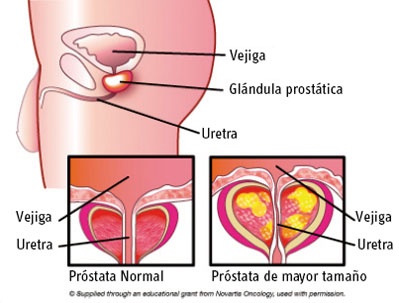 prostata-inflamada-inflamacion