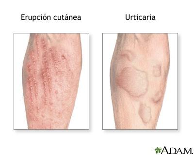 alergias-o-problemas-de-piel-cuida-tus-pulmones-erupciones