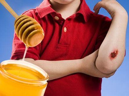 beneficios-de-la-miel-para-la-salud-heridas