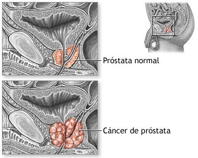 prostata-inflamada-cancer-dificultades