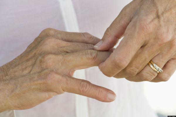 curcuma-propiedades-y-beneficios-artritis
