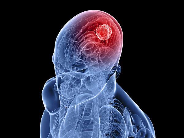 curcuma-propiedades-y-beneficios-tumores