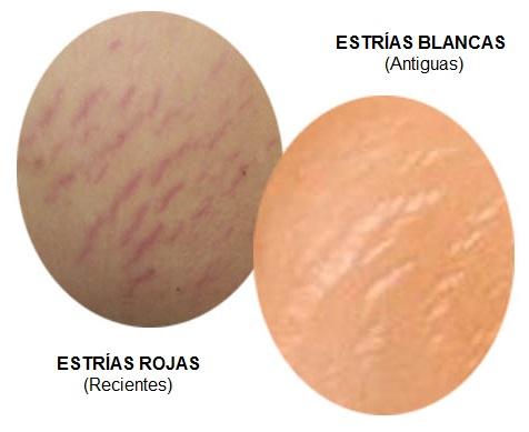 estrias-rojas-y-blancas-remedios-fotos