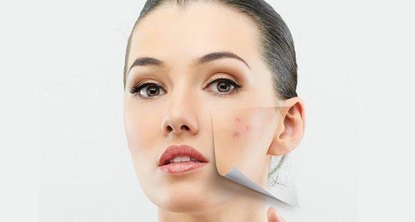 las-mejores-cremas-para-eliminar-cicatrices-eliminando
