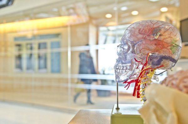 diagnosticos-de-aneurismas-cerebrales