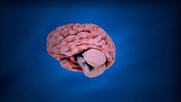 tratamiento-de-aneurismas-en-el-cerebro