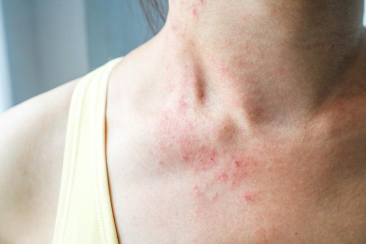 Los Mejores Remedios Caseros Para Combatir Los Eczemas World Health Design