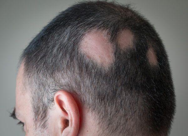 Que es la alopecia areata sintomas causas y tratamientos