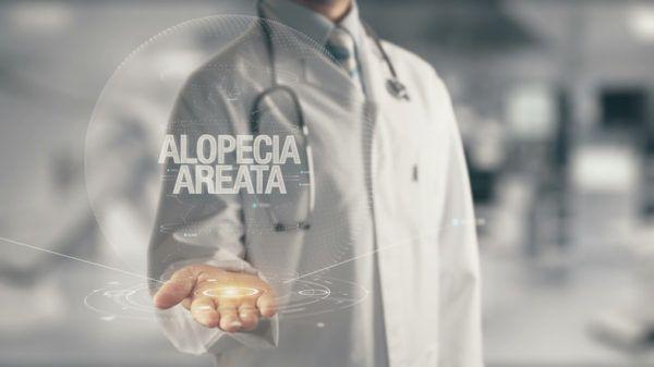 Que es la alopecia areata sintomas causas y tratamientos medicos