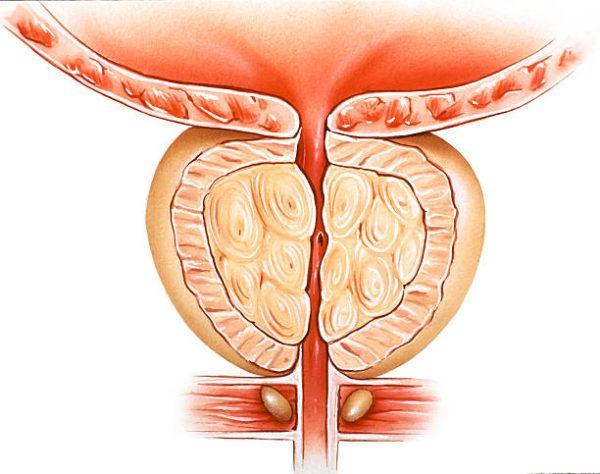 Los mejores remedios naturales para prostata glandula prostatica