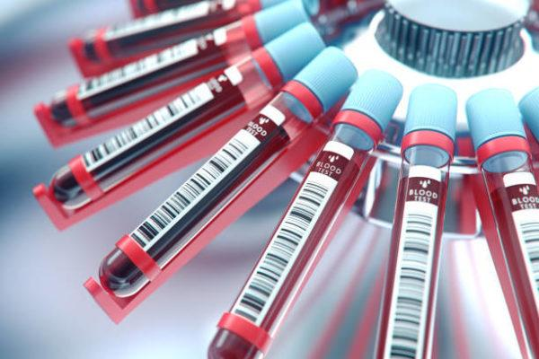 Que es el hcm en sangre test