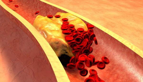 Que es hipercolesterolemia los sintomas prevencion dietas