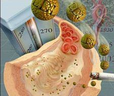 El colesterol no obstruye las arterias