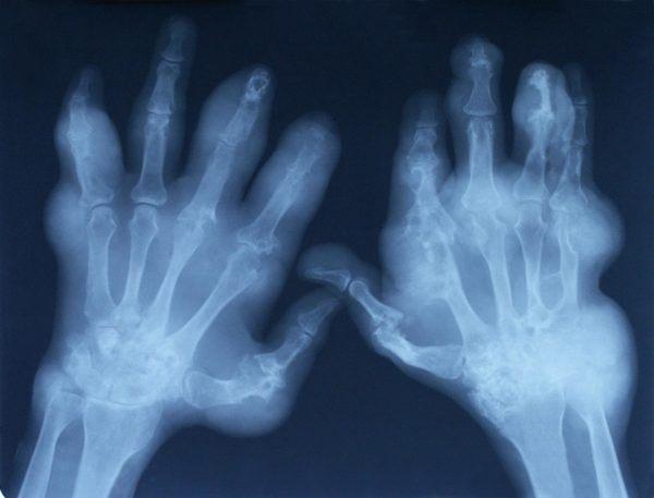 rosa-mosqueta-beneficios-y-propiedades-Tramiento-para-la-Artritis-y-Osteoartritis