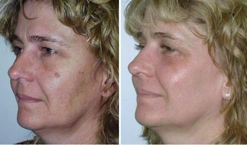rosa-mosqueta-beneficios-y-propiedades-Tratamiento para las estrías y manchas en la piel