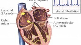 Arritmias – Síntomas, tipos y alimentos que ayudan a evitarlas