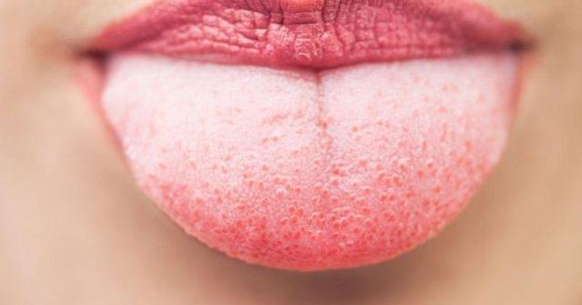 Glosodiagnosis o diagnóstico por la Lengua | Medicina