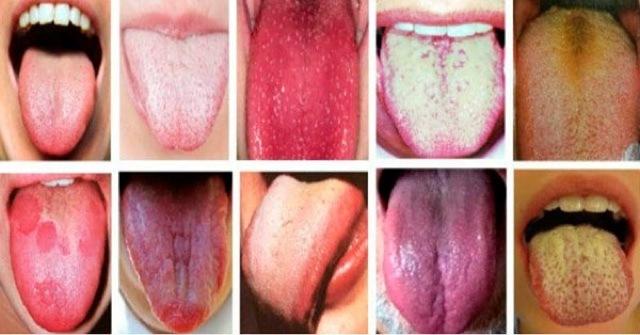 Glosodiagnosis-diagnóstico-por-la-Lengua-Medicina-china-color-forma-movimientos-de-la-lengua
