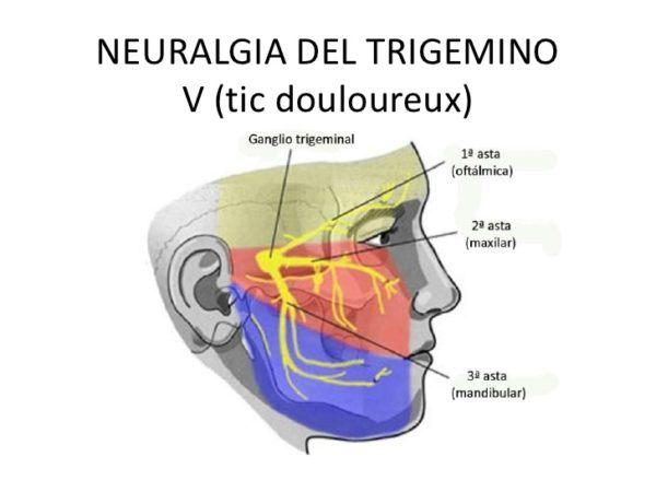 Acupuntura-neuralgia-del-trigémino-Qué-es-tratamientos