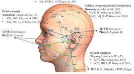 Acupuntura y neuralgia del trigémino | Qué es y tratamientos