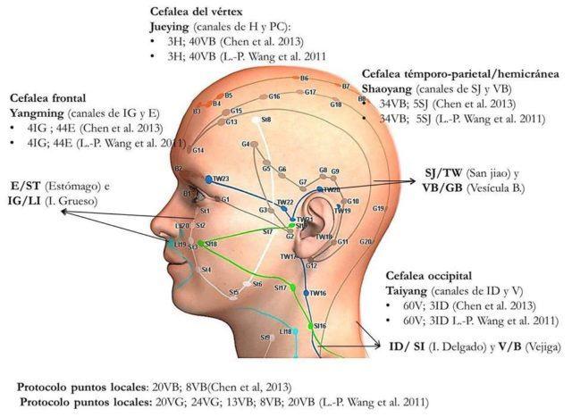 Acupuntura Y Neuralgia Del Trigémino Qué Es Y Tratamientos