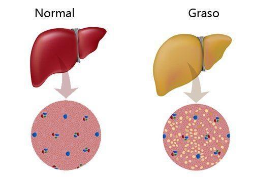higado-graso-causas-y-tratamiento-aspecto
