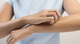Me pica la piel ¿por qué? | La piel y los nervios