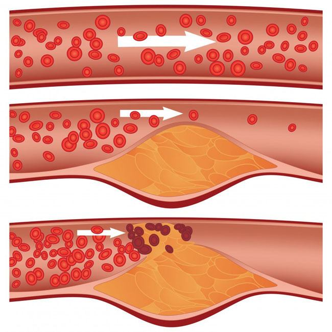 Cómo-bajar-el-colesterol-sin-medicamentos