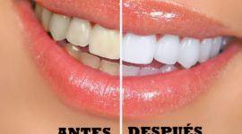 Dientes blancos – Remedios naturales para tener los dientes más blancos