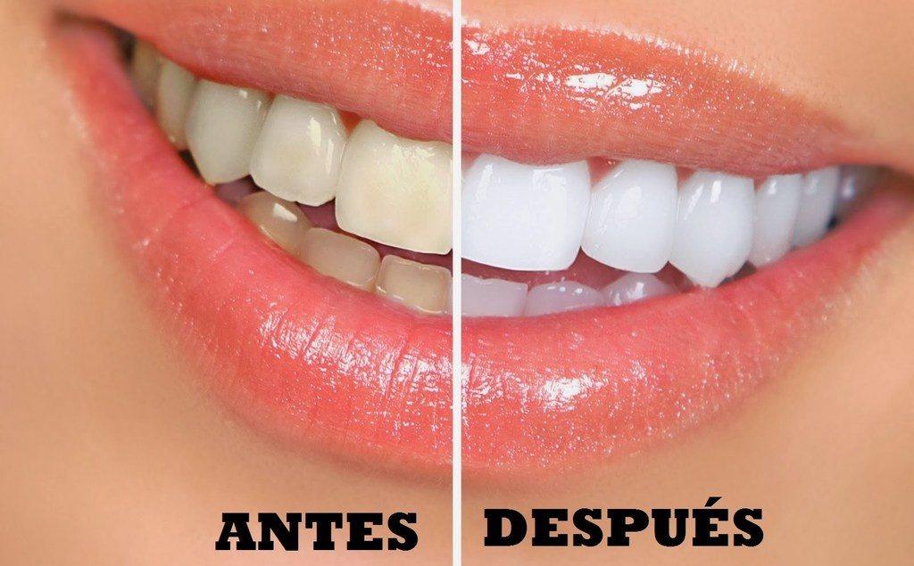 Resultado de imagen para dientes mas blancos