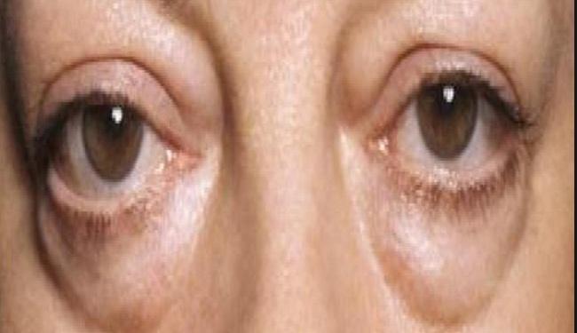 La reducción de las mejillas en la cosmetología