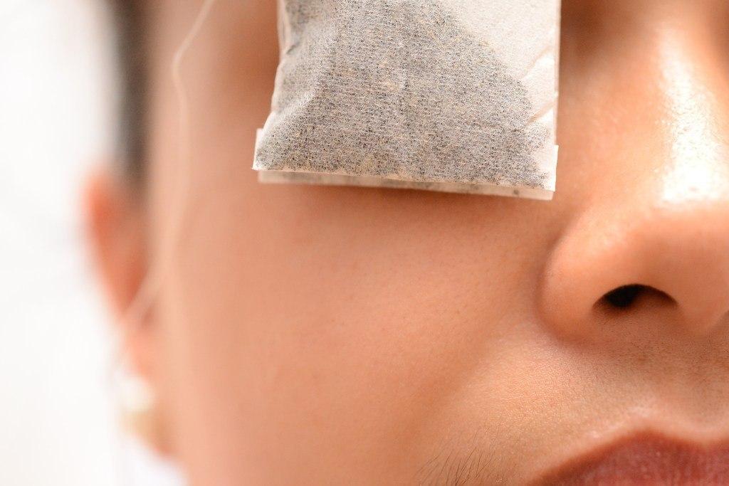 Hinchazón-de-ojos-Causas-tratamiento-cómo-aliviar-el-hinchazón-de-ojos-hinchados
