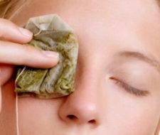 Remedios para los Orzuelos
