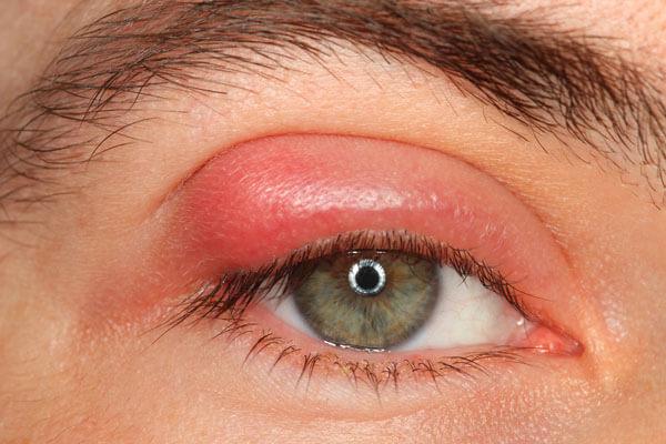 remedios-para-los-orzuelos-ojo-afectado