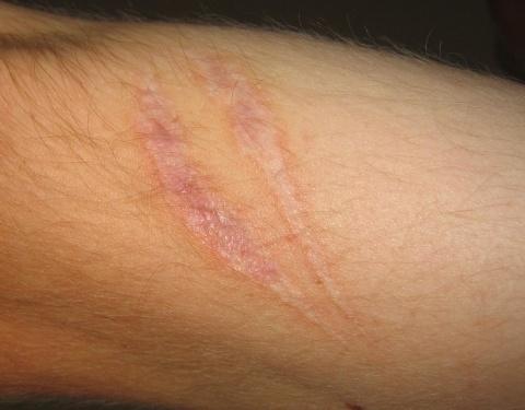 sangre-drago-propiedades-eficaz-cicatrizante