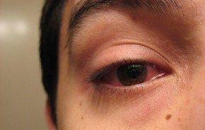 Remedios caseros conjuntivitis