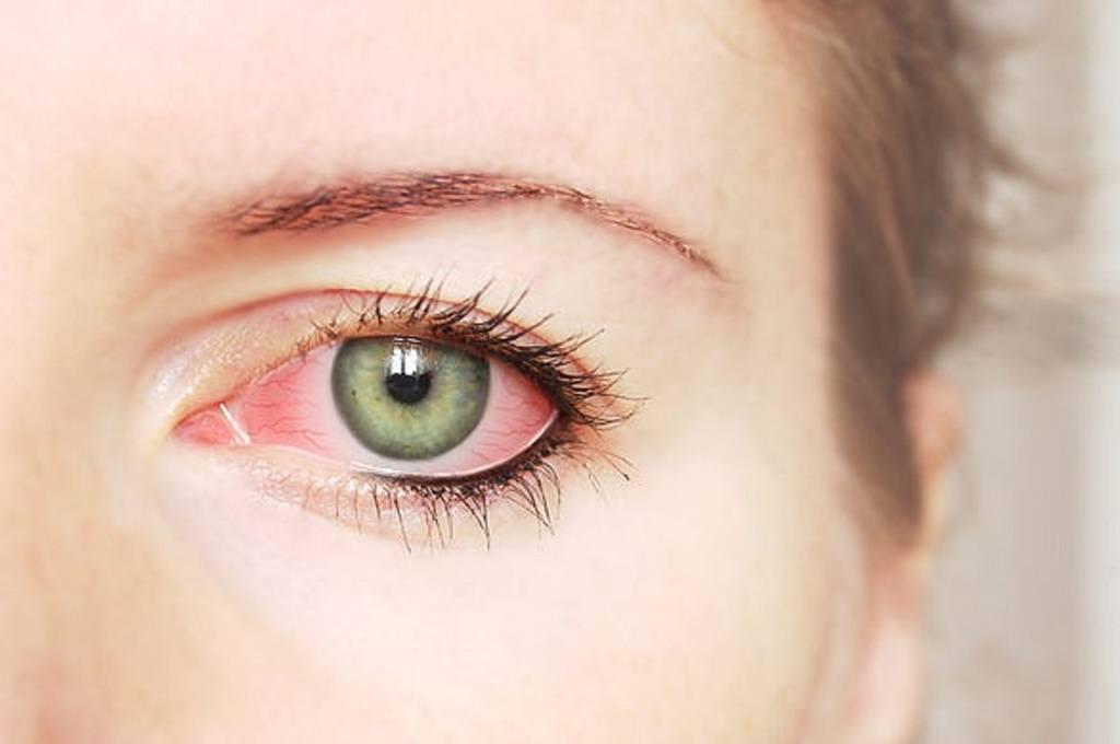 Remedios-caseros-para-la-conjuntivitis