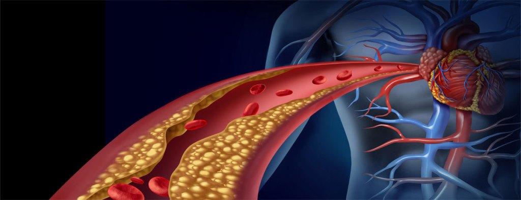 Triglicéridos-Qué-son-causas-y-síntomas-de-los-triglicéridos-altos