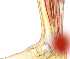 Tendinitis – causas, síntomas y tratamiento