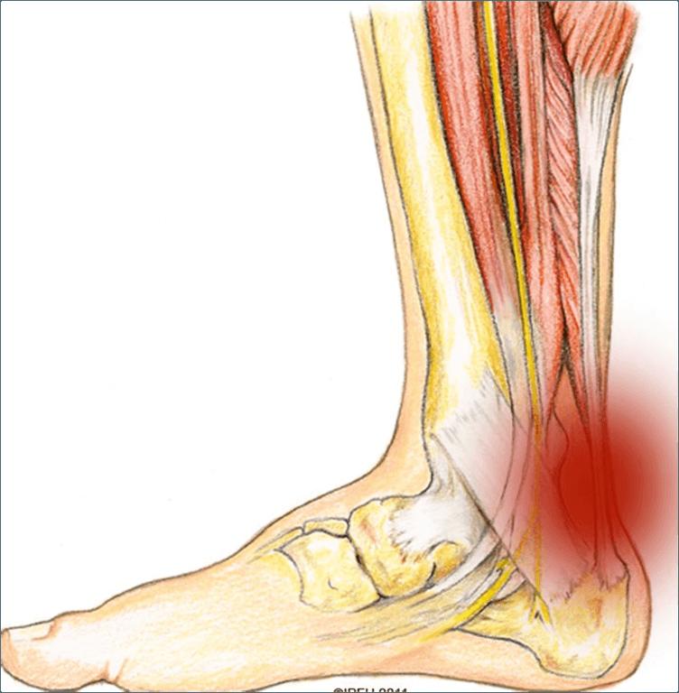 tendinitis-causas-sintomas-y-tratamiento-talon