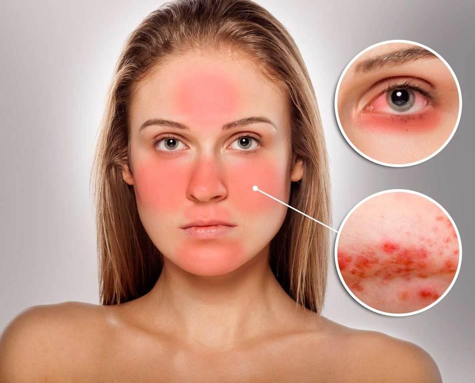 Remedios Caseros Para La Rosácea Cuperosis O Enrojecimiento Facial Viviendosanos Com