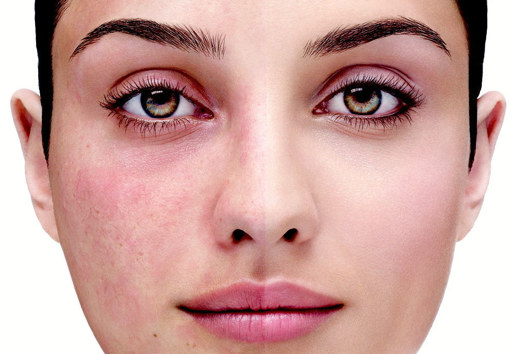 Remedios-caseros-para-la-rosacea-cuperosis-enrojecimiento-facial