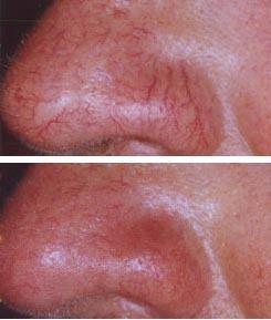 spider-veins-on-nose.jpg