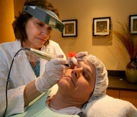 Laser-Skin-Treatment