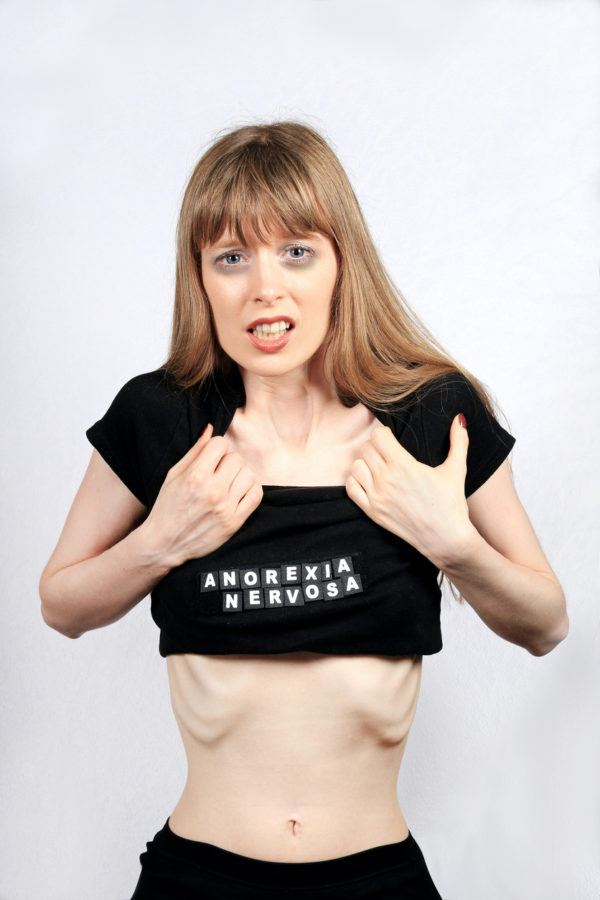 Como afecta la anorexia a la salud menos grasa corporal