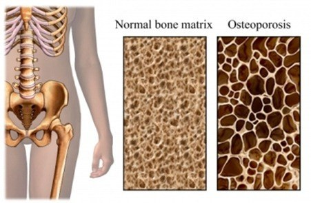 osteoporosis_bone_close_up