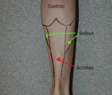 Soleo. Un musculo de la pierna